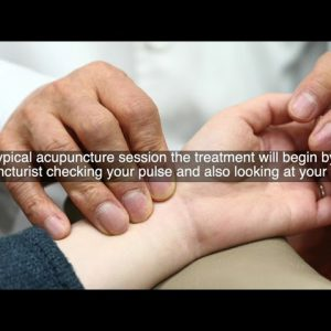 What is Acupuncture? How it works and The Benefits